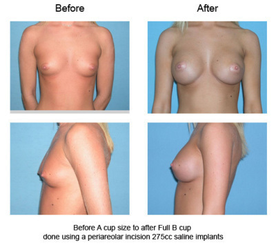 Breast Reduction H Cup Doctor Answers QampA Tips  RealSelf